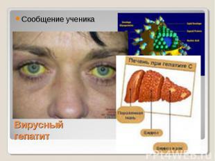 Сообщение ученика Вирусный гепатит
