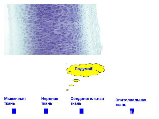 Мышечная ткань Нервная ткань Соединительная ткань Эпителиальная ткань
