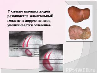 У сильно пьющих людей развивается алкогольный гепатит и цирроз печени, увеличива