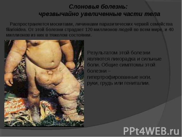 Слоновья болезнь: чрезвычайно увеличенные части тела Распространяется москитами, личинками паразитических червей семейства filarioidea. От этой болезни страдает 120 миллионов людей во всем мире, и 40 миллионов из них в тяжелом состоянии. Результатом…