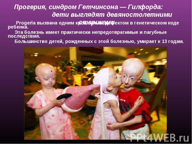 Прогерия, синдром Гетчинсона— Гилфорда: дети выглядят девяностолетними стариками Progeria вызвана одним крошечным дефектом в генетическом коде ребенка. Эта болезнь имеет практически непредотвратимые и пагубные последствия. Большинство детей, рожден…