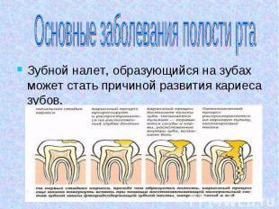 Основные заболевания полости рта Зубной налет, образующийся на зубах может стать