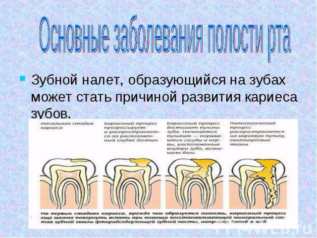 Основные заболевания полости рта Зубной налет, образующийся на зубах может стать причиной развития кариеса зубов.
