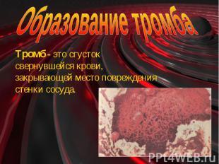 Образование тромба Тромб - это сгусток свернувшейся крови, закрывающей место пов