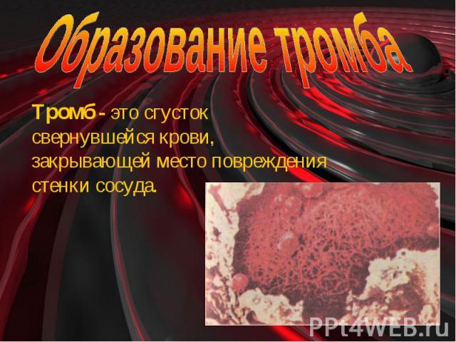 Образование тромба Тромб - это сгусток свернувшейся крови, закрывающей место повреждения стенки сосуда.