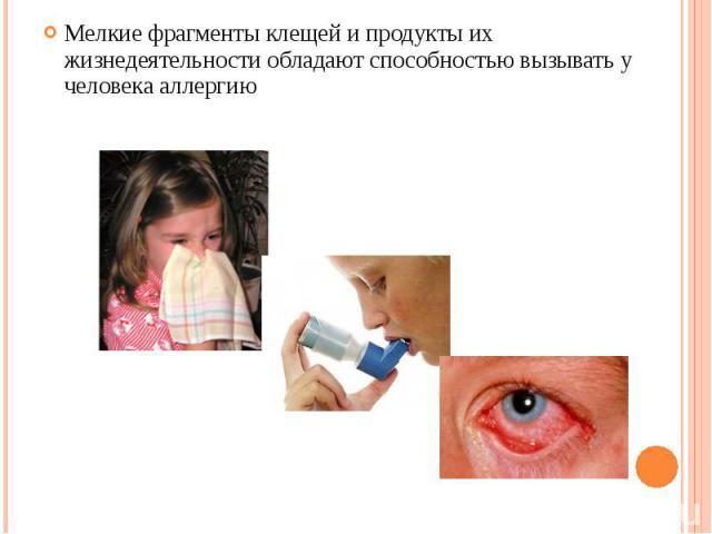 Мелкие фрагменты клещей и продукты их жизнедеятельности обладают способностью вызывать у человека аллергию