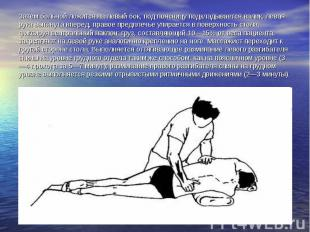 Затем больной ложится на левый бок, под поясницу подкладывается валик, левая рук