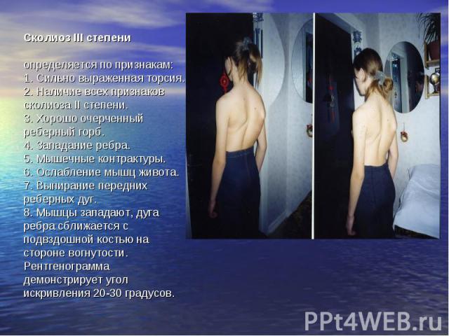 Сколиоз III степени определяется по признакам:1. Сильно выраженная торсия.2. Наличие всех признаков сколиоза II степени.3. Хорошо очерченный реберный горб.4. Западание ребра.5. Мышечные контрактуры.6. Ослабление мышц живота.7. Выпирание передних реб…