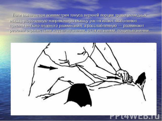Если выявляется асимметрия тонуса верхней порции трапециевидных мышц, укороченную напряженную мышцу растягивают, выполняют приемы мягкого плавного разминания, а расслабленную — разминают резкими отрывистыми надавливаниями, оттягиваниями, пощипываниями.