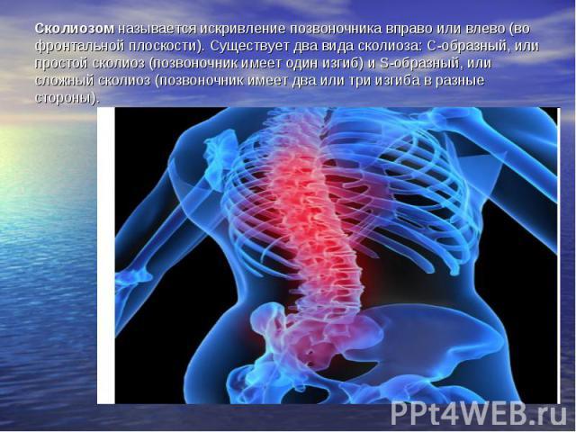 Сколиозом называется искривление позвоночника вправо или влево (во фронтальной плоскости). Существует два вида сколиоза: С-образный, или простой сколиоз (позвоночник имеет один изгиб) и S-образный, или сложный сколиоз (позвоночник имеет два или три …