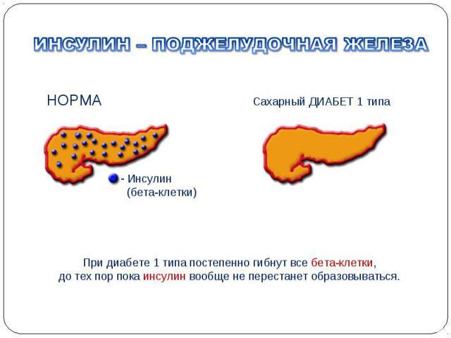 При диабете 1 типа постепенно гибнут все бета-клетки, до тех пор пока инсулин вообще не перестанет образовываться. НОРМА Сахарный ДИАБЕТ 1 типа Инсулин (бета-клетки)