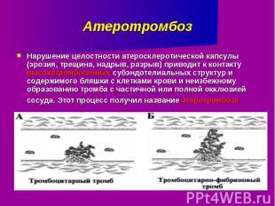 Атеротромбоз Нарушение целостности атеросклеротической капсулы (эрозия, трещина,