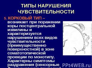 ТИПЫ НАРУШЕНИЯ ЧУВСТВИТЕЛЬНОСТИ 5. КОРКОВЫЙ ТИП – возникает при поражении коры п