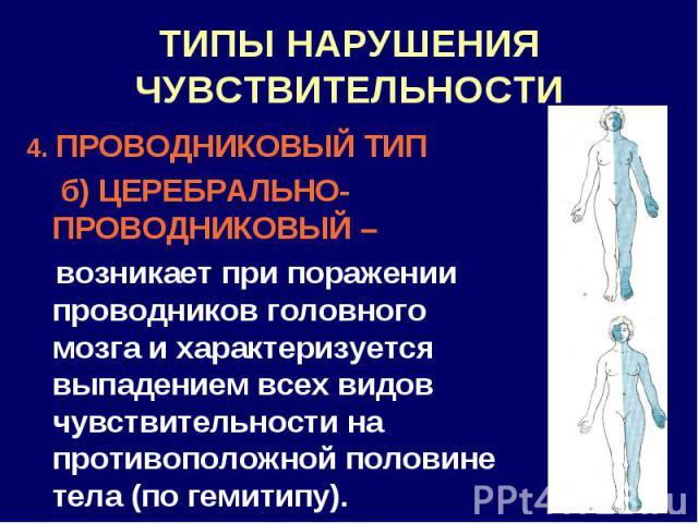 ТИПЫ НАРУШЕНИЯ ЧУВСТВИТЕЛЬНОСТИ 4. ПРОВОДНИКОВЫЙ ТИП б) ЦЕРЕБРАЛЬНО-ПРОВОДНИКОВЫЙ – возникает при поражении проводников головного мозга и характеризуется выпадением всех видов чувствительности на противоположной половине тела (по гемитипу).