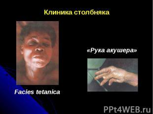 Клиника столбняка «Рука акушера» Facies tetanica