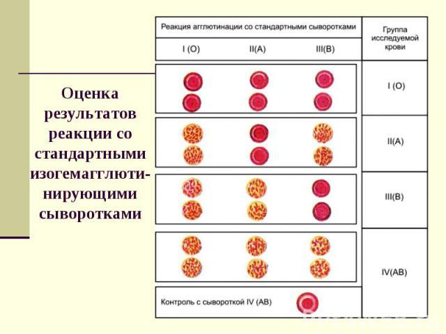 Оценка результатов реакции со стандартными изогемагглюти-нирующими сыворотками