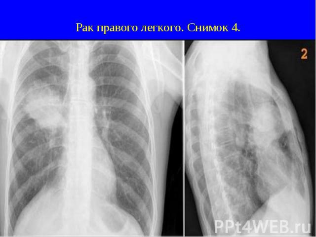 Рак правого легкого. Снимок 4.