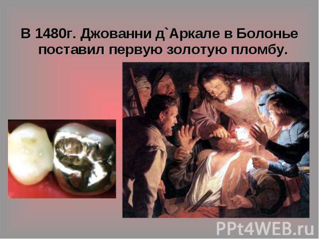 В 1480г. Джованни д`Аркале в Болонье поставил первую золотую пломбу.