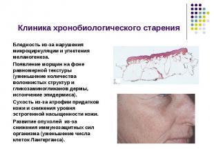 Клиника хронобиологического старения Бледность из-за нарушения микроциркуляции и