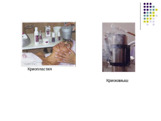 Криопластия Криокамыш