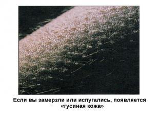 Если вы замерзли или испугались, появляется «гусиная кожа»
