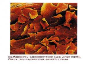 Под микроскопом на поверхности кожи видны мелкие чешуйки. Они постоянно слущиваю
