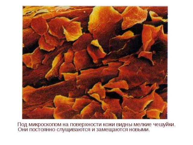 Под микроскопом на поверхности кожи видны мелкие чешуйки. Они постоянно слущиваются и замещаются новыми.