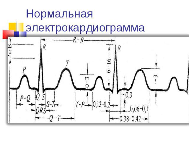 Нормальная электрокардиограмма
