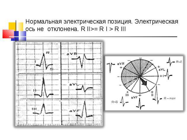 Нормальная электрическая позиция. Электрическая ось не отклонена. R ІІ>= R І > R ІІІ
