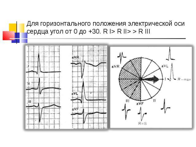 Для горизонтального положения электрической оси сердца угол от 0 до +30. R І> R ІІ> > R ІІІ