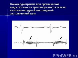 Фонокардиограмма при органической недостаточности трехстворчатого клапана: низко