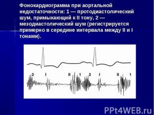 Фонокардиограмма при аортальной недостаточности: 1 — протодиастолический шум, пр