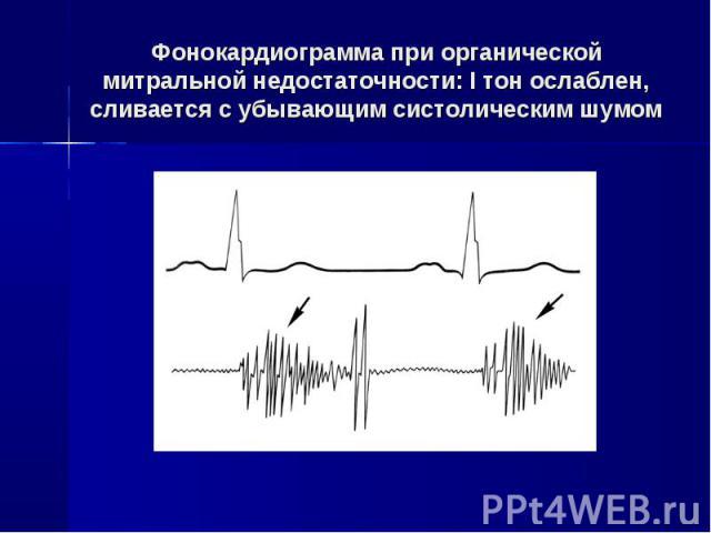 Фонокардиограмма при органической митральной недостаточности: I тон ослаблен, сливается с убывающим систолическим шумом
