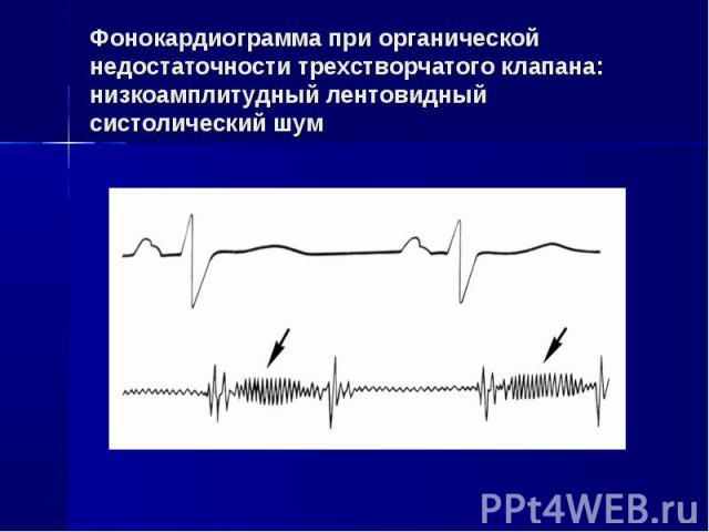 Фонокардиограмма при органической недостаточности трехстворчатого клапана: низкоамплитудный лентовидный систолический шум