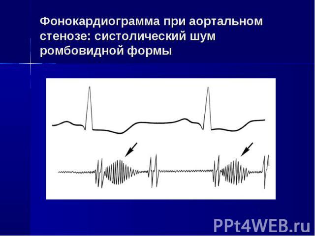 Фонокардиограмма при аортальном стенозе: систолический шум ромбовидной формы