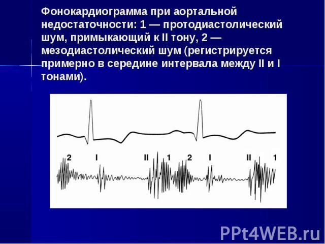 Фонокардиограмма при аортальной недостаточности: 1 — протодиастолический шум, примыкающий к II тону, 2 — мезодиастолический шум (регистрируется примерно в середине интервала между II и I тонами).