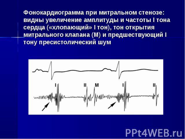Фонокардиограмма при митральном стенозе: видны увеличение амплитуды и частоты I тона сердца («хлопающий» I тон), тон открытия митрального клапана (М) и предшествующий I тону пресистолический шум