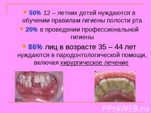 50% 12 – летних детей нуждаются в обучении правилам гигиены полости рта 20% в пр