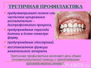 Третичная профилактика включает весь объем стоматологической помощи с преобладан