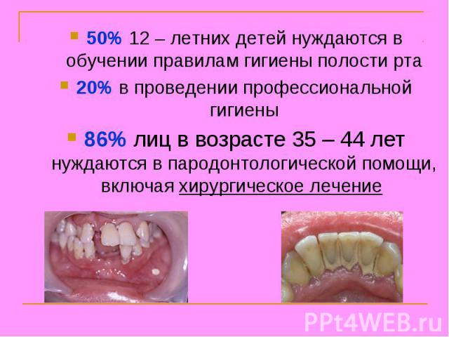 50% 12 – летних детей нуждаются в обучении правилам гигиены полости рта 20% в проведении профессиональной гигиены 86% лиц в возрасте 35 – 44 лет нуждаются в пародонтологической помощи, включая хирургическое лечение