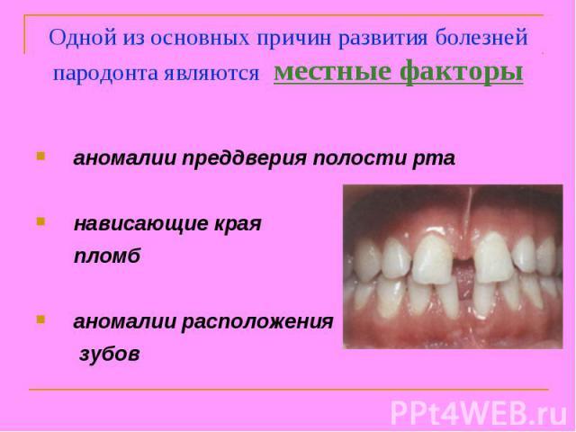 Одной из основных причин развития болезней пародонта являются местные факторы аномалии преддверия полости рта нависающие края пломб аномалии расположения зубов