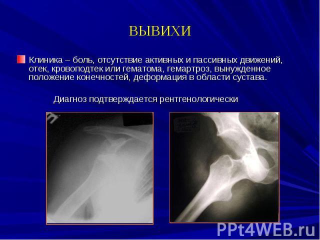 ВЫВИХИ Клиника – боль, отсутствие активных и пассивных движений, отек, кровоподтек или гематома, гемартроз, вынужденное положение конечностей, деформация в области сустава. Диагноз подтверждается рентгенологически