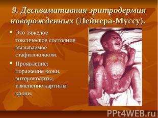 9. Десквамативная эритродермия новорожденных (Лейнера-Муссу). Это тяжелое токсич