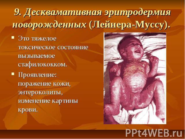 9. Десквамативная эритродермия новорожденных (Лейнера-Муссу). Это тяжелое токсическое состояние вызываемое стафилококком. Проявление: поражение кожи, энтероколиты, изменение картины крови.