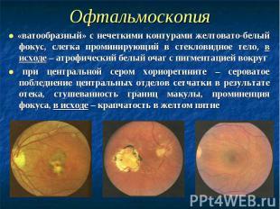 Офтальмоскопия ● «ватообразный» с нечеткими контурами желтовато-белый фокус, сле