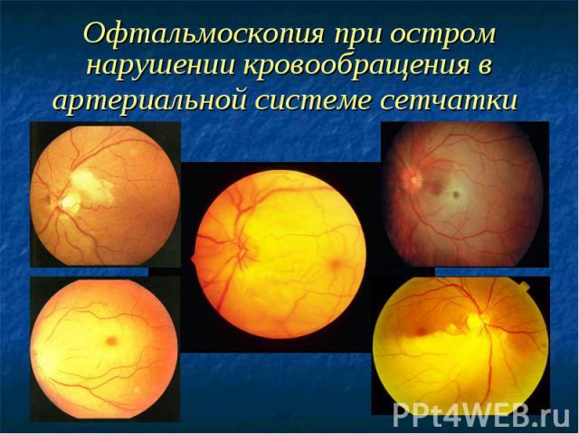 Офтальмоскопия при остром нарушении кровообращения в артериальной системе сетчатки