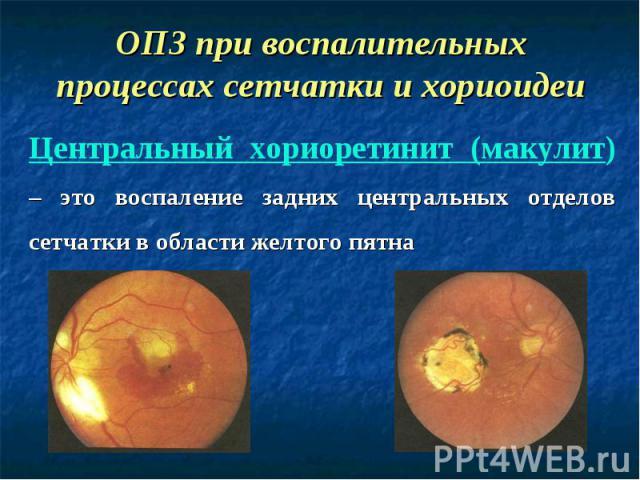 Центральный хориоретинит (макулит) – это воспаление задних центральных отделов сетчатки в области желтого пятна ОПЗ при воспалительных процессах сетчатки и хориоидеи