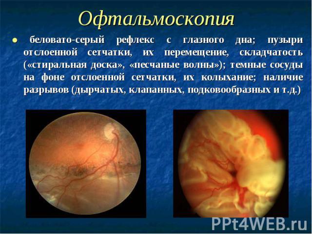 Офтальмоскопия ● беловато-серый рефлекс с глазного дна; пузыри отслоенной сетчатки, их перемещение, складчатость («стиральная доска», «песчаные волны»); темные сосуды на фоне отслоенной сетчатки, их колыхание; наличие разрывов (дырчатых, клапанных, …