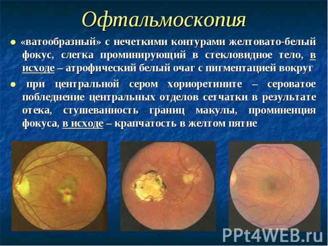 Офтальмоскопия ● «ватообразный» с нечеткими контурами желтовато-белый фокус, слегка проминирующий в стекловидное тело, в исходе – атрофический белый очаг с пигментацией вокруг ● при центральной сером хориоретините – сероватое побледнение центральных…