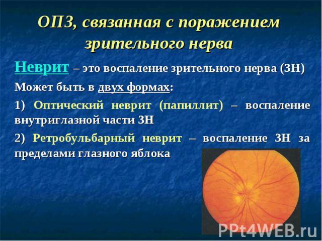 Неврит – это воспаление зрительного нерва (ЗН) Может быть в двух формах: 1) Оптический неврит (папиллит) – воспаление внутриглазной части ЗН 2) Ретробульбарный неврит – воспаление ЗН за пределами глазного яблока ОПЗ, связанная с поражением зрительно…